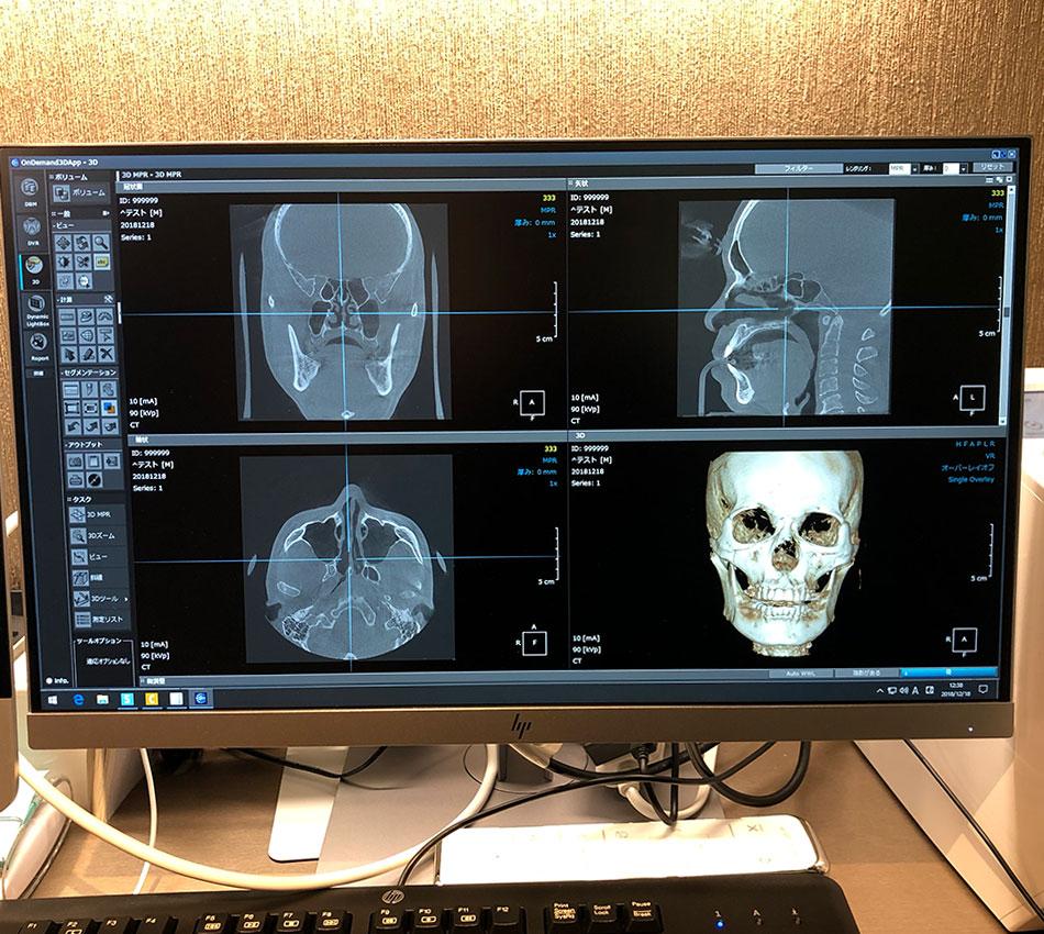 ミライズ矯正最新CT